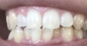 ホワイトニング後の歯
